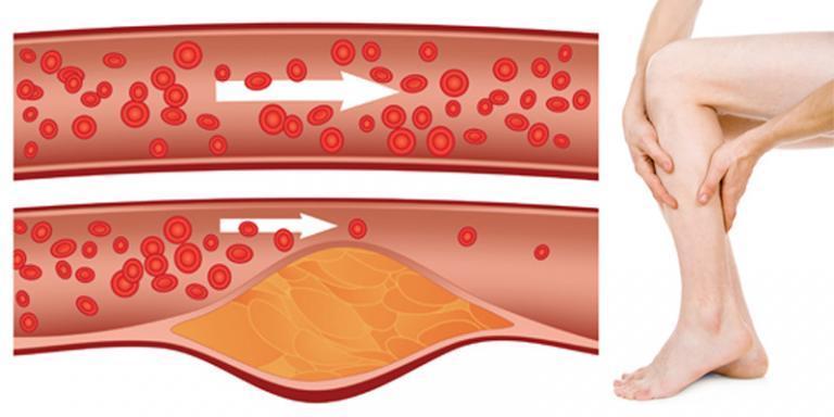 hipertónia a világ statisztikájában a magas vérnyomás betegségének jellemzői