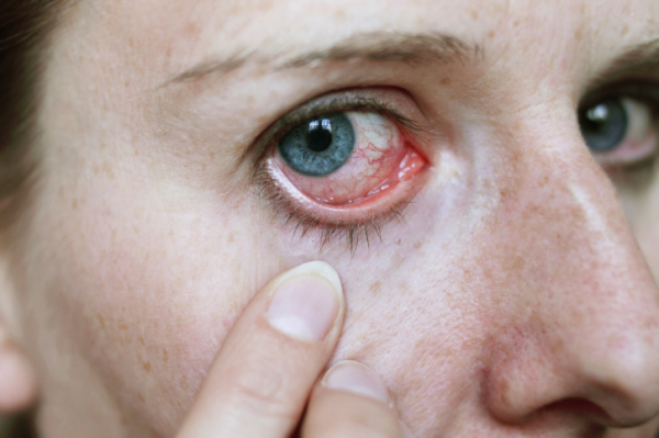 magas vérnyomás és a szem magas vérnyomás 1 stádiumú tünetek