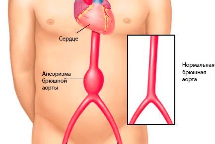 EKG magas vérnyomás esetén 1 fok