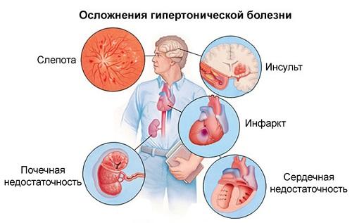 betegoktatás a magas vérnyomásról