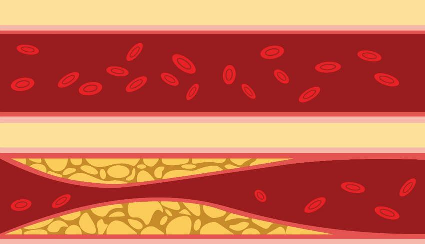 magas vérnyomás megelőzési módszerek