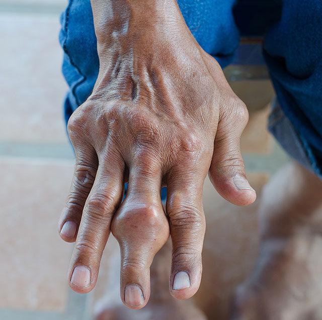 segítség a magas vérnyomás rohamaiban magas vérnyomás gyógyszer béta