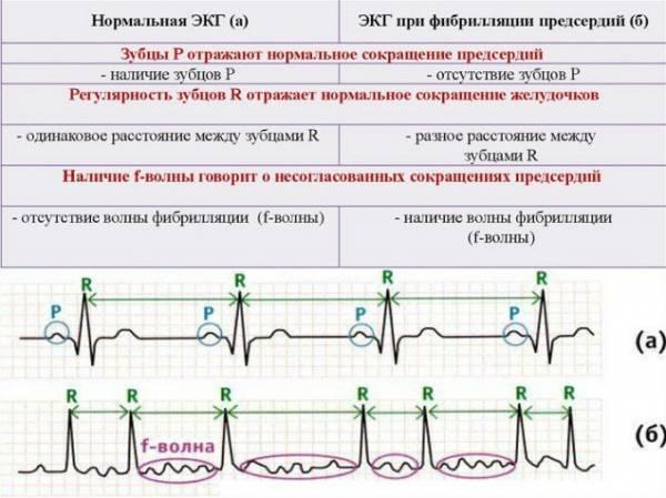 a magas vérnyomás jelei az EKG-n a gyógyítók tanácsai a magas vérnyomás kezelésében