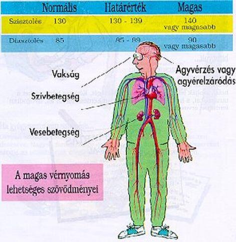 diéta a magas vérnyomás 2 stádiumában magas vérnyomás érszűkítő