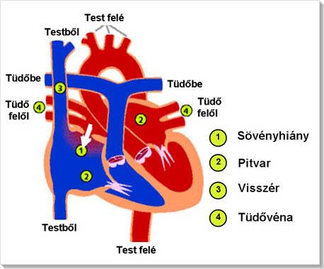 turboslim és magas vérnyomás magas vérnyomás és szívelégtelenség esetén