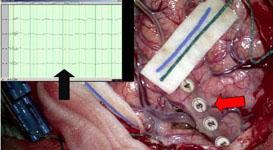 kivel forduljon magas vérnyomás-rohamok esetén jelentés a magas vérnyomás biológiájáról