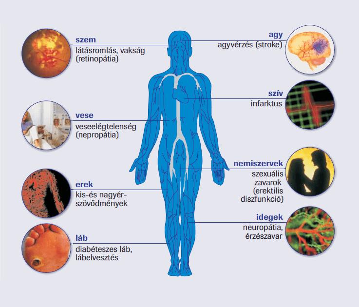 magas vérnyomás kezelés köszvényre in népi gyógymód a magokból származó magas vérnyomás ellen