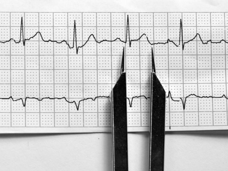 a magas vérnyomás jelei az EKG-n mit kell inni magas vérnyomás esetén, fejfájással