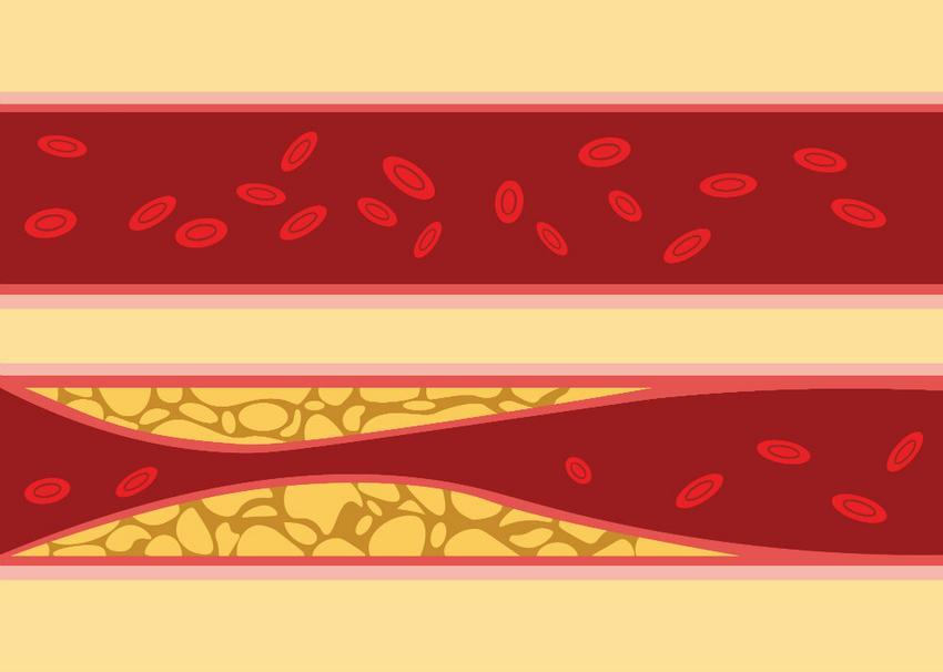 vese magas vérnyomás kezelés népi LV magas vérnyomás