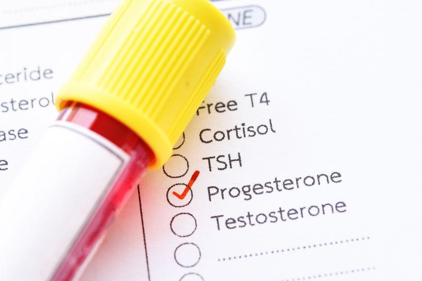 magas vérnyomás kezelés köszvényre in hogyan működik a magas vérnyomás a férfiaknál