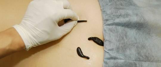 hirudoterápiás tanfolyam hipertónia esetén magas vérnyomás kezelésére jóddal