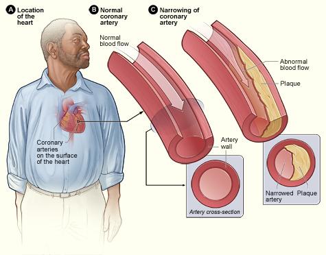 Így csökkenthető a testsúly, a vérnyomás és a koleszterinszint - EgészségKalauz