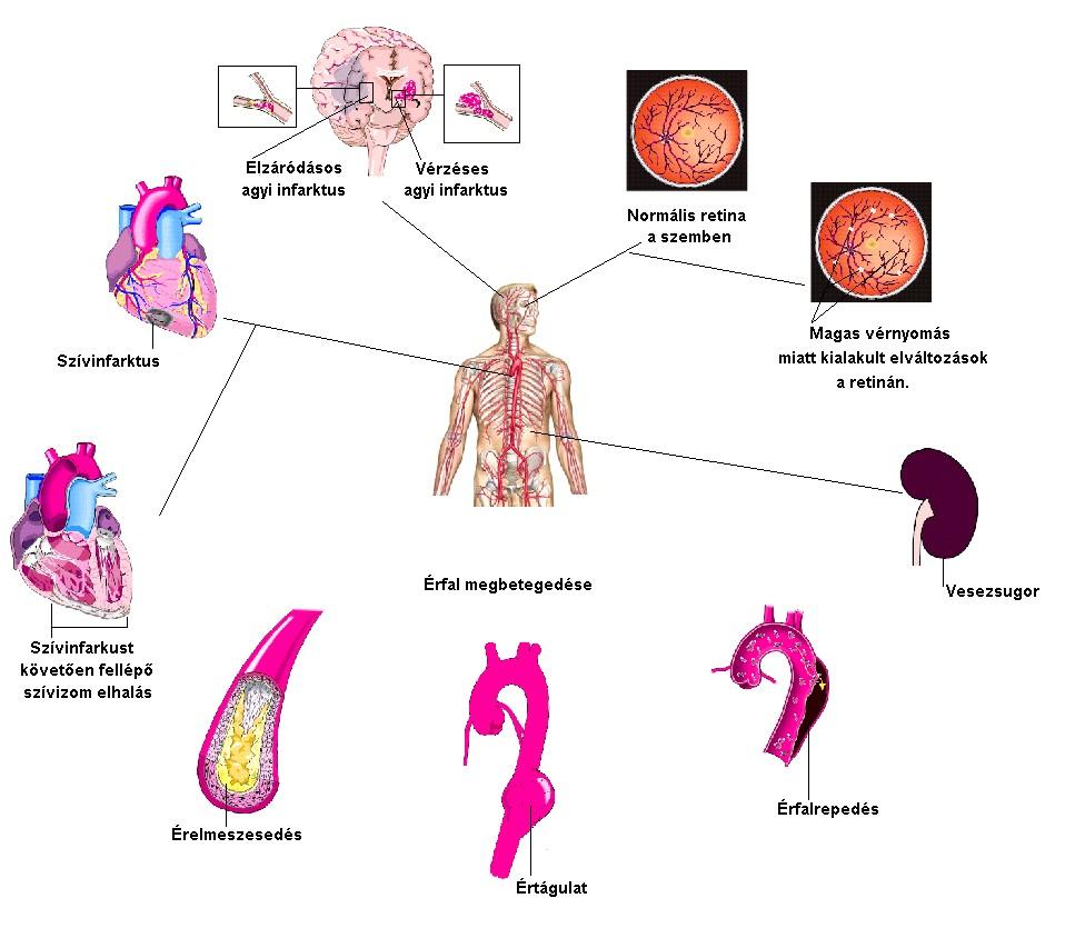 magas vérnyomás esetén milyen panaszok magas vérnyomás milyen nyomáson