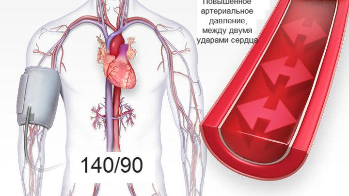 magas vérnyomás mit kell tenni a válságok elkerülése érdekében