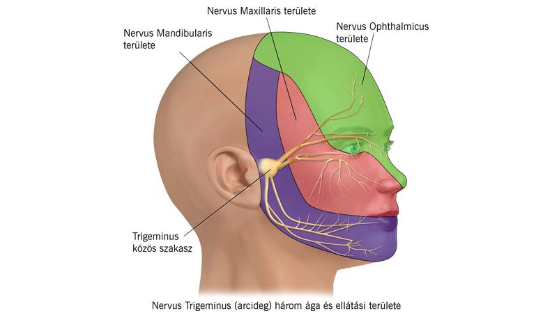 neuralgia miatti magas vérnyomás