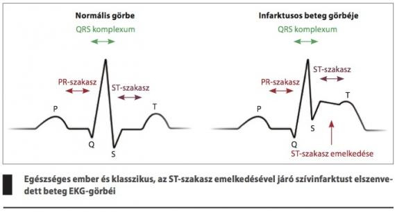 a magas vérnyomás jelei az EKG-n magas vérnyomás 1 fokozat 3 fokú kockázat
