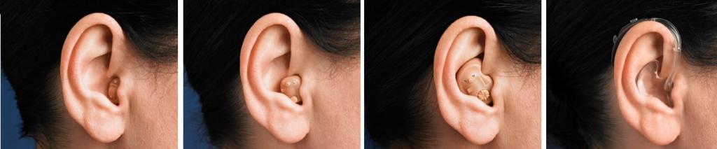 hallókészülék és magas vérnyomás