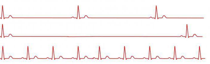Az IHC magas vérnyomás betegségeinek ütemezése. Magas vérnyomás és fogvatartás